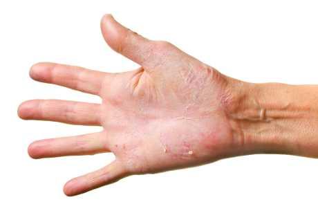 Psoriasis på hender